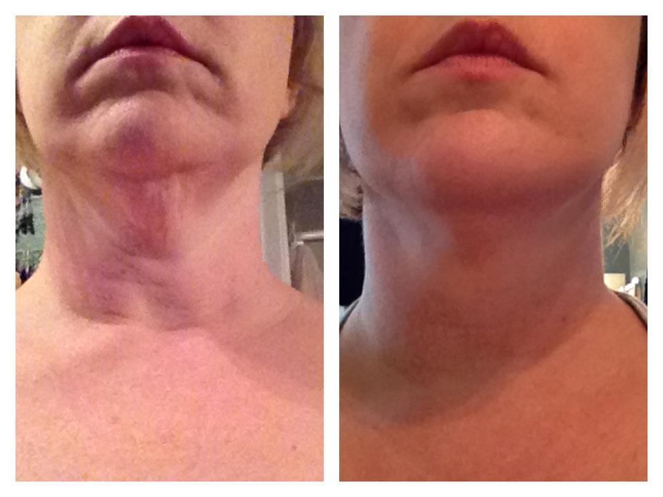 Nerium AD – Nerium International – Skin Care Revolution