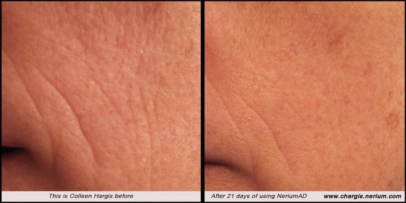 Nerium Ad Before And After | Beautiful Scenery Photography